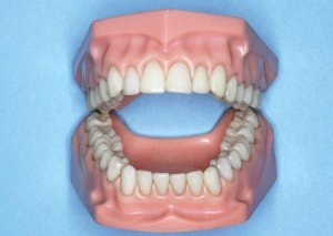 dentist-false-teeth